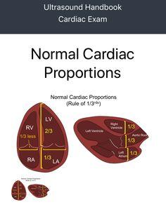 Nursing Tips, Nursing Notes, Cardiac Sonography, Abdominal Aorta, Medical Photos, Cardiac Nursing, Fundamentals Of Nursing, Human Anatomy And Physiology, Neurology