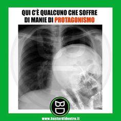 Manie di protagonismo eccessive! Tagga i tuoi amici e #condividi #bastardidentro #radiografia #scheletro #foto www.bastardidentro.it