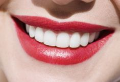 If you are unhappy with your smile due to dental issues then you should seek the professional help. You need complete orthodontics solution from expert dentist of Sydney so that you can get perfect smile. If you have bad oral hygiene then it can affect your social presence. Treatment from expert will be beneficial for you.