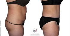 For a free and private consultation with Dr. Michelle Jones Singer, call or visit www. Tummy Tuck Surgery, Surgery Recovery, Wrinkled Skin, Tummy Tucks, Abdominal Muscles, Body Contouring, Liposuction, Stretch Marks, Plastic Surgery