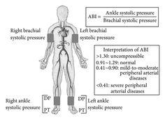 dorsal vein in foot - Google Search | vascular | Pinterest ...
