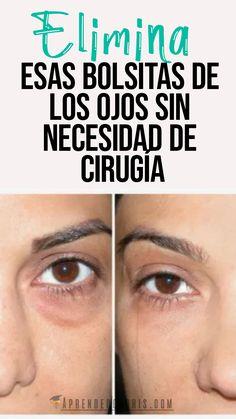 Belleza Natural, Skin Care, Bass, Dark Circle, Sweet Almond Oil, Skin Treatments, Under Eye Wrinkles, Natural Face Masks, Stubborn Belly Fat