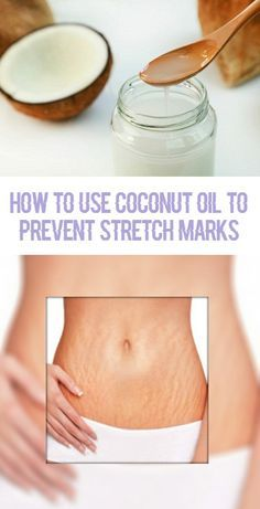 How to Use Coconut Oil to get Rid of Stretch Marks