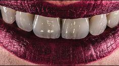 dentalmorphology, copynature