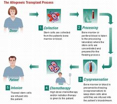 Getting Allogeneic Stem Cell Transplant In India