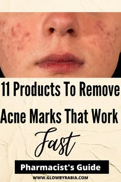 Have you managed to clear acne only to be left with awful acne scars? We can help with our tried and tested list of products that are proven to reduce acne marks. Acne Treatment and acne treatment products handpicked by a dermatology pharmacist Acne scars| Acne Marks| how to fade acne marks| Acne marks remedies| products for acne scars| Remove acne scar products| Products to remove acne marks| treatments for acne scars| how to remove acne scar products How To Fade, Acne Mask, Natural Acne Remedies, Acne Causes, Acne Scar Removal, Best Acne Treatment, Remove Acne, How To Get Rid Of Acne, How To Treat Acne