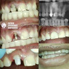 Paciente que llega a la #Consulta #Odontologica con Restauración de #Resina mal planificada y defectuosa. Se realiza #Corona #Provisional para posteriormente realizar #Corona de #eMax