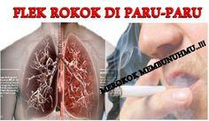 """Obat Pembersih Flek Paru-paru Akibat Asap Rokok >> Ace Maxs pembersih flek paru-paru yang AMPUH. Pesan disini """"Barang Sampai Baru Bayar"""" Dijamin AMAN dan BERKUALITAS."""