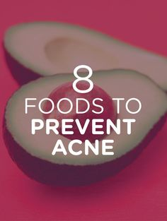 First food that prevents acne: Avocado. Read on to find out the other 7!