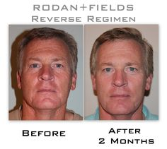Rodan And Fields Before And After | This is his before and after pictures from Rodan+Fields Reverse