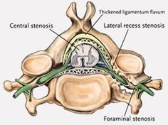 The Difference Between Foraminal Central Amp Lateral