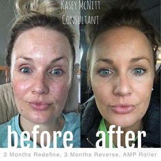 "Wowza! Check out these results!! Do you have sun damage or melasma? Do you wonder if Rodan + Fields is the real deal? You'll want to check out what Kasey had to say about her results! ""Stepping far outside of my comfort zone & posting some real life results! I promised myself I would do this after 6 months of using these amazing products!! To say they're great is an understatement. Stepping outside of my house with no make-up after being up all night with babe...THANK YOU RODAN AND FIELDS!!"""