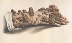 From weeping warts to leprosy: the gruesome art of medical illustration