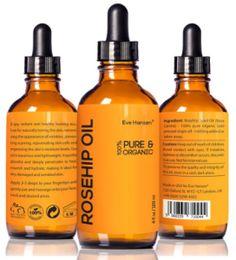 Rosehip oil benefits acne
