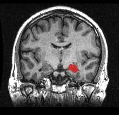 Scientists Identify Protein Linking Exercise to Brain Health - A protein that is increased by endurance exercise has been isolated and given to non-exercising mice, in which it turned on genes that promote brain health and encourage the growth of new nerves involved in learning and memory, report scientists from Dana-Farber Cancer Institute and Harvard Medical School. This illustrative image is an MRI scan which shows the location of the hippocampus in the human brain. #neuroscience #science