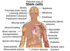 Stem Cell Therapy For Spinal Problems Pros & Cons of Embryonic Stem Cell Research – Liberal Politics – Most scientists believe that embryonic stem cells Mitosis, Lesão Cerebral, Revolution, What Is Stem, Huntington Disease, Cord Blood Banking, Stem Cell Research, Stem Cell Therapy, Spinal Cord Injury