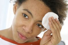 Top 10 Fastest Acne Treatment Ways for Teens published in TopTeny magazine Health - Acne is probably a problem that many teens face. There can be various causes for the problem of acne. Maybe, m... -   -  #Acne #ClearSkin #HealthyFoods #topten #top10 #onlinemagazine #toptenymagazine #trends #top10lists