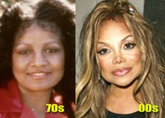 "plastic women | LaToya Jackson Plastic Surgery and ""The Celebrity Apprentice ..."