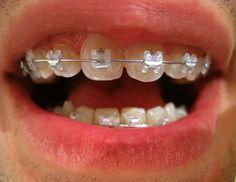 appareil dentaire avec bague céramique pour adulte