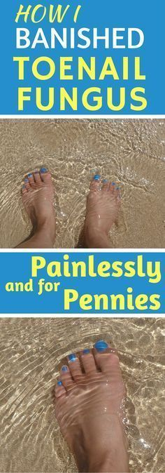 About eight years ago I developed a case of toenail fungus. Even though my feet