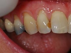 Amalgam fillings can stain your teeth and make them look darker. Teeth are decay free but the discoloration is at present. Dental Hygiene, Dental Health, Amalgam Fillings, Oral Pathology, Dental Fillings, Brace Face, Front Teeth, Stained Teeth, Al Dente