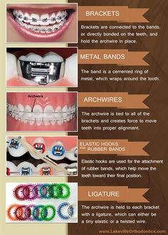 Dentaltown - The 5 basic parts to braces: brackets, metal bands, archwires, elastic hooks and rubber bands, & ligature.