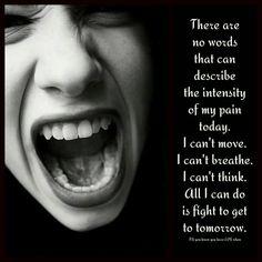 Life with Lupus/Fibromyalgia/ Chronic Pain. This is my day today - unbearable pain :'-( Fibromyalgia Pain, Chronic Migraines, Chronic Illness, Chronic Pain, Fibromyalgia Disability, Endometriosis Awareness, Trigeminal Neuralgia, Ankylosing Spondylitis, Guillain Barre