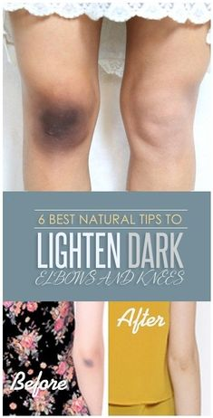 6 Best Natural Tips to Lighten Dark Elbows and Knees – 18aims