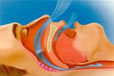 Stop Snoring Remedies-Tips - 7 Crazy Symptoms of a Heart Attack - The Easy, 3 Minutes Exercises That Completely Cured My Horrendous Snoring And Sleep Apnea And Have Since Helped Thousands Of People – The Very First Night! Sleep Apnea Remedies, Snoring Remedies, Obstructive Sleep Apnoea, Sleep Apnea In Children, What Causes Sleep Apnea, Sleep Apnea Treatment, Heart Attack Symptoms, Sleep Studies, Nasal Passages