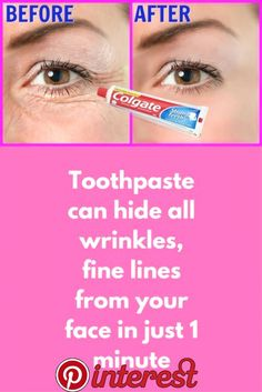 Step 1 – Pack For this, you will need A plain toothpaste, do not use any gel-based toothpaste (Use plain Colgate) Tomato juice Vitamin E capsule Aloe vera gel First, in a clean bowl take half spoo… Home Remedies For Wrinkles, Wrinkle Remedies, Aloe Vera Face Mask, Face Wrinkles, Under Eye Wrinkles, Acne Face, Homemade Face Masks, Aloe Vera Gel, Skin Treatments