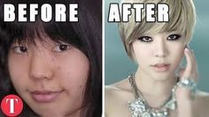 Top 10 K-POP Stars BEFORE Plastic Surgery - Video