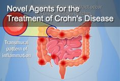 Audience:  Healthcare providers   Developed and produced for  www.MDPracticeGuide.com       Animation Description:     Animation reviews novel agents for the treatment of Crohn's Disease that target key biologic steps in the inflammatory process. Crohn's disease is an autoimmune disorder characterized by chronic transmural inflammation of the gastrointestinal tract. Inflammation can be seen anywhere along the GI tract but is most often found in the terminal ileum and cecum of the ascendi...