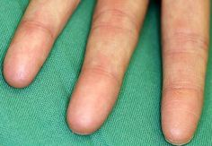 You can't tell me that a genetic mutation that causes people not to have fingerprints isn't awesome.