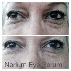 Nerium Eye Serum on my friend Sylvia. 2 minute results.