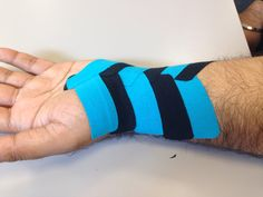 Blue and Black Kinesio Tape being utilized togehter to heal the wrist. #wrist #recovery #wellness #kinesio #kinesiotape http://www.orthoco.com/Kinesio_Tape_s/3.htm