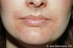 Perioral Dermatitis - stop using topical steroid creams and heavy moisturizers. Wash with an antibacterial soap and sleep on your back so the bacteria doesn't spread via your pillow