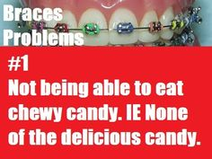 25 Best Braces images in 2014 | Braces humor, Braces problems, Brace