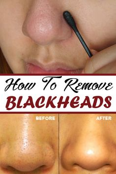 How To Remove Blackheads - Flawless Shape