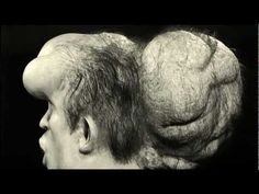 Joseph Merrick - The Real Elephant Man (1862 - 1890) Left-handed. #LefthandersIntl - http://Left-handersInternational.com