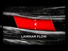 Introduction to Doppler Ultrasound - YouTube