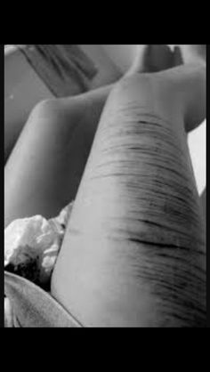 I didn't get to say I love you... but I promised I wouldn't cut... and now I'm dying and I have no way out and you aren't there. I need you...