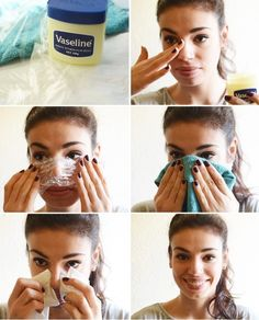 Instant Remedies to get rid of blackheads