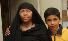Naeema Azar of Pakistan, shown with her son Ahmed, was disfigured and blinded when her husband threw acid on her. She has bravely spoken out against acid attacks, refusing to hide herself and working with the Progressive Women's Association of Pakistan to end the ready sale of acid. Hers is the face of courage.