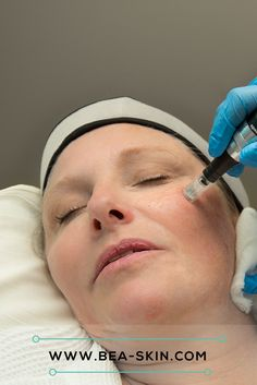 Microneedling is a proven #antiageing method that carries far fewer risks than ablative lasers do and renders amazing results on deep wrinkles and depressed scars. Although the length of the needles used can be up to 2.5mm, it is a largely painless procedure thanks to the use of medical-grade numbing agents in advance. Microneedling devices work by mechanically inserting tiny holes into the skin's surface. This causes micro-injuries to the skin's surface and stimulates the production of…