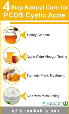 Natural Skin Remedies 4 Step Natural Cure For PCOS Cystic Acne - PCOS cystic acne is large, red and deep breakouts in your skin. It is a severe form of normal acne that is caused by hormonal imbalances. Severe Acne Treatment, Natural Acne Treatment, Acne Treatments, Acne Skin, Acne Scars, Acne Facial, Oily Skin, Sensitive Skin, Natural Cures