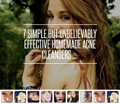 7 Simple but Unbelievably Effective Homemade Acne Cleansers ... → Beauty