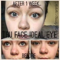 Whoa  amazing results after just one week! The discolouration and puffiness is gone from her eyes! You have until Sunday night to bag this item with 20% off. I'll be adding one to my personal order, let me know if you'd like one too! . . . #eyes #bags #darkcircles #fresh #everyday #beauty #essentials #idealeyes #transformationtuesday #transformation #tuesday #tueslay