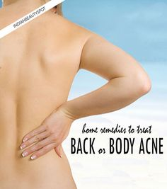 Natural treatments to get rid of body or back acne - ♥ IndianBeautySpot.Com ♥