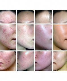Adult acne is tough. Hormonal and cystic acne as an adult is even tougher. One woman shares her struggles, her experience with different types of acne and how to get clear skin. Acne Hormonal, Hormonal Acne Remedies, Natural Acne Remedies, Clear Skin Detox, Different Types Of Acne, Overnight Acne Remedies, Back Acne Treatment, Acne Marks, How To Get Rid Of Acne