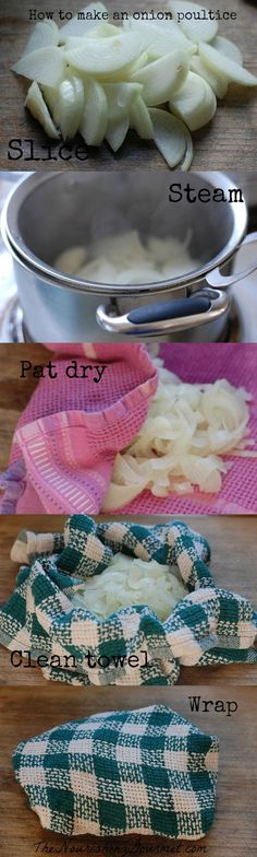 How to Make an Onion Poultice - This is an old fashioned home remedy for coughs and chest congestion. Many find it very helpful and effective! -- The Nourishing Gourmet